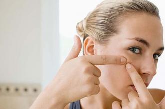 Nejlepší přípravky na akné. Účinné doplňky a krémy na akné? Mast, kosmetika, maska na pupínky - Hodnocení produktu 2019